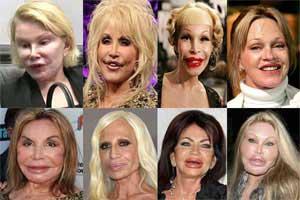 Celebrity Extreme Plastic Surgery