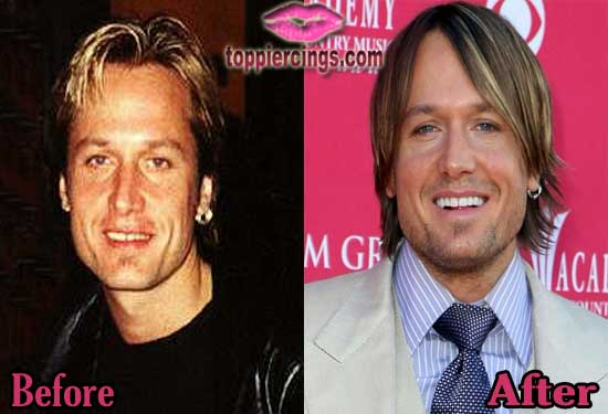 Keith Urban Before and After Plastic Surgery