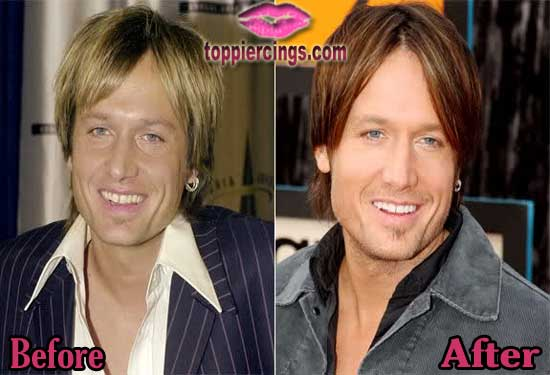 Keith Urban Facelift Before and After