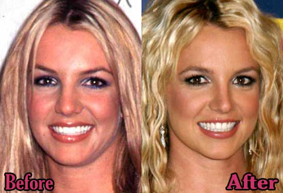 Britney Spears Nose Job Before and After