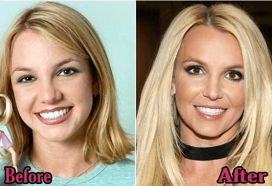 Britney Spears Rhinoplasty Surgery