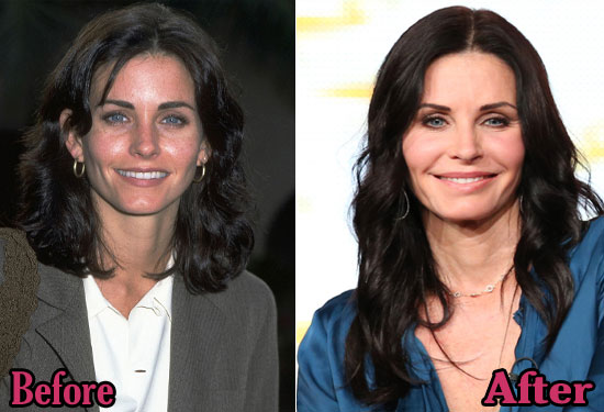 Courteney Cox Plastic Surgery Before And After Photos