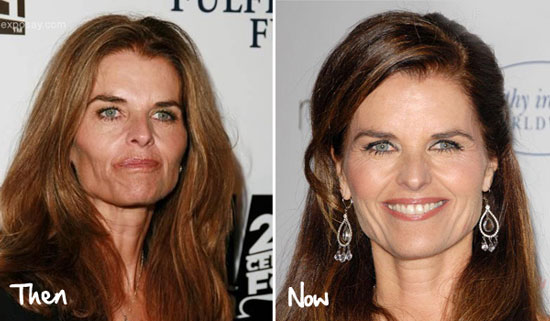 Maria Shriver Facelift Before and After