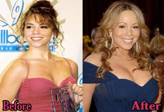 Mariah Carey Breast Implant Before and After