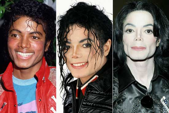 Michael Jackson Plastic Surgery Before and After – Top ...