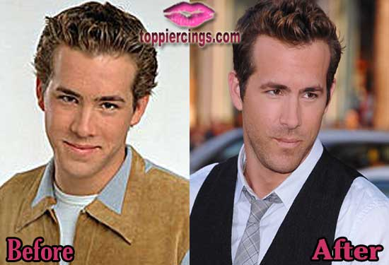 Ryan Reynolds Before and After Plastic Surgery