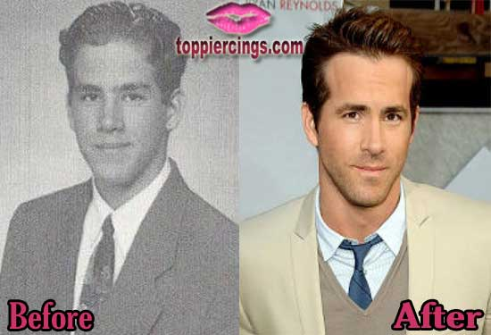 Ryan Reynolds Plastic Surgery Before and After