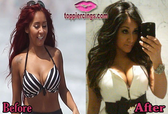 Snooki Plastic Surgery Before and After Photos – Top Piercings  Snooki Plastic ...