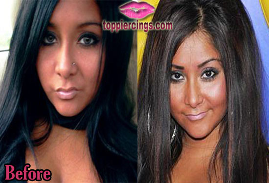 Snooki Nose Job Before and After