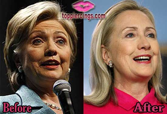 Hillary Clinton Facelift Before and After