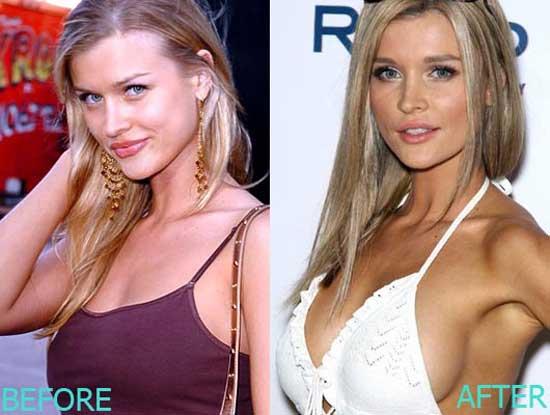 Joanna Krupa Boob Job Before and After