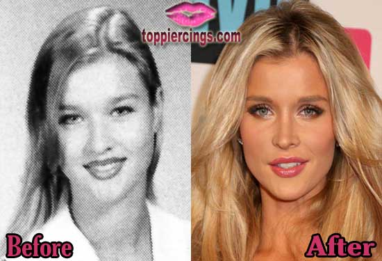 Joanna Krupa Nose Job Before and After