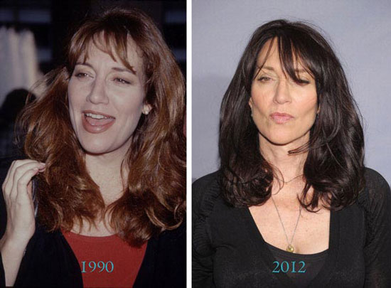 Katey Sagal Before and After Plastic Surgery