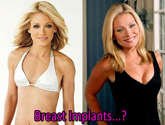 Kelly Ripa Breast Implants Before and After