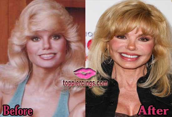 Loni Anderson Before and After Plastic Surgery