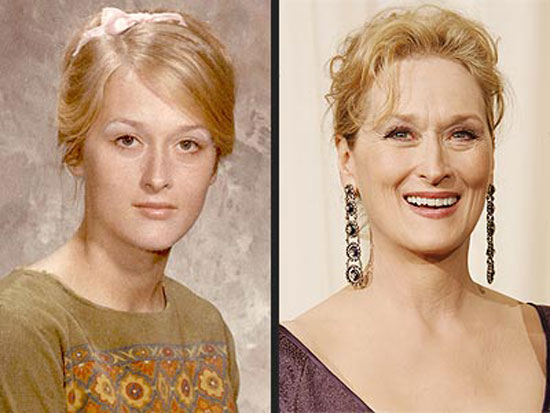 Meryl Streep Before and After Plastic Surgery