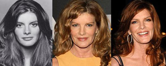 Rene Russo Before and After Plastic Surgery