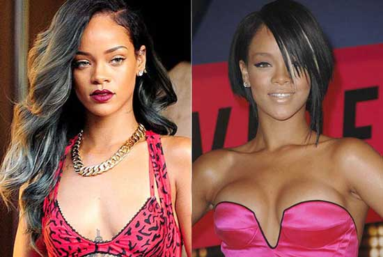 Rihanna Breast Implants or Boob Job