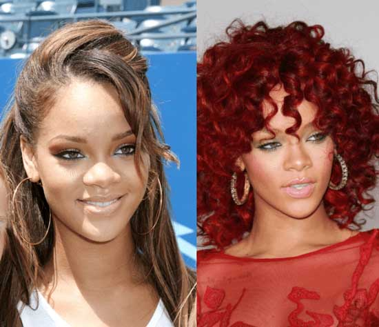 Rihanna Nose Job Before and After