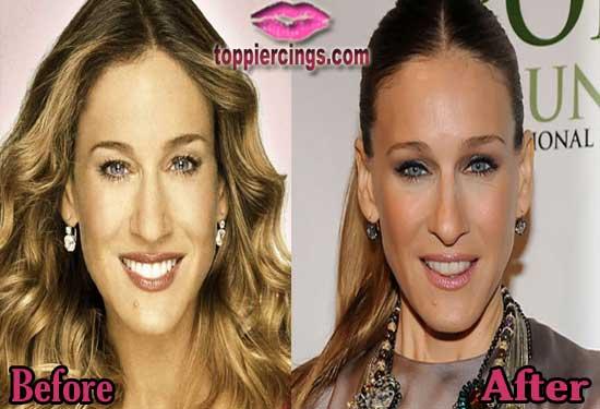 Sarah Jessica Parker Plastic Surgery Botox Injection
