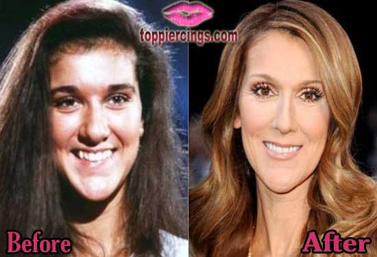 Sarah Jessica Rhinoplasty Surgery Before and After