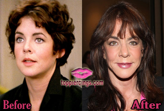 Stockard Channing Before and After Plastic Surgery