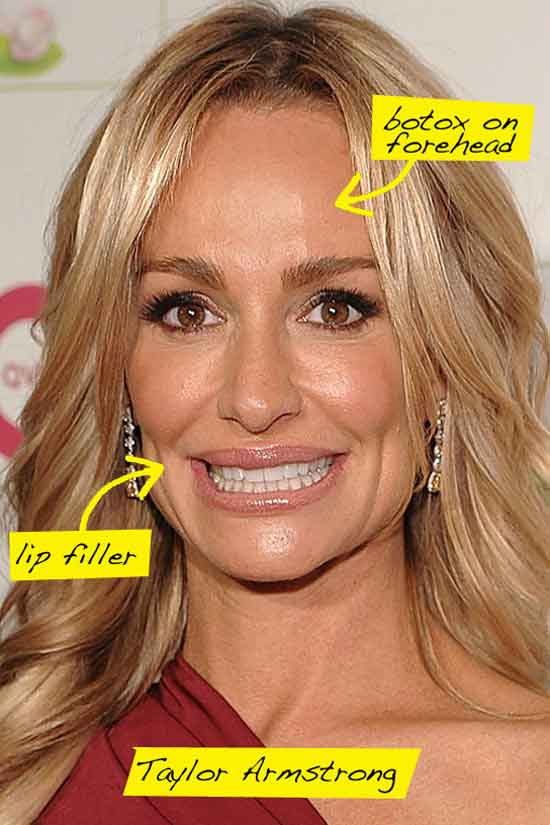 Taylor Armstrong Plastic Surgery Procedures