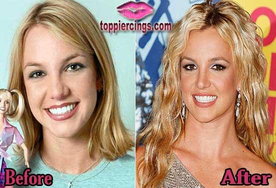 Britney Spears Rhinoplasty Surgery Before and After