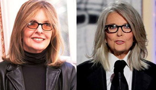 Diane Keaton Plastic Surgery Before and After Pictures