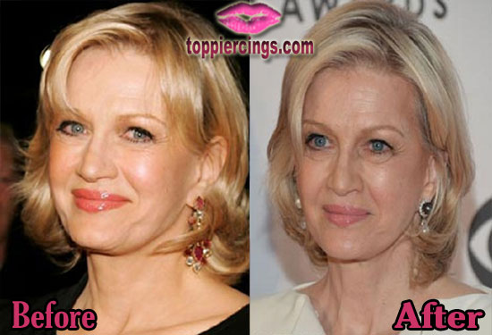 Diane Sawyer Cosmetic Surgery Before and After