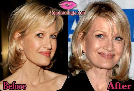 Diane Sawyer Facelift Before and After