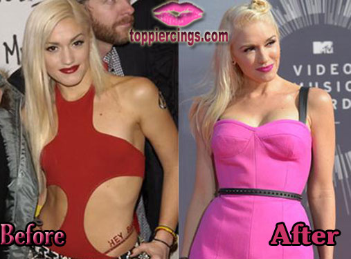 Gwen Stefani Breast Implants Before and After Pictures