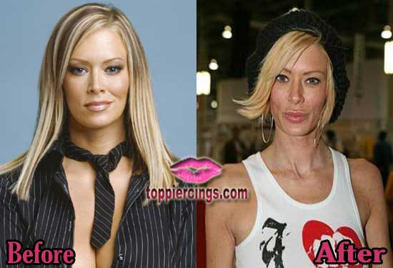 Jenna Jameson Before and After Photos