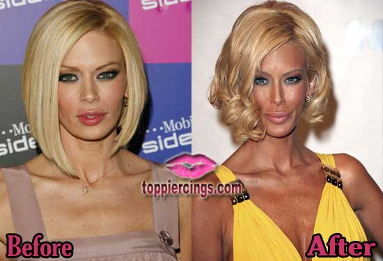 Jenna Jameson Plastic Surgery Gone Wrong