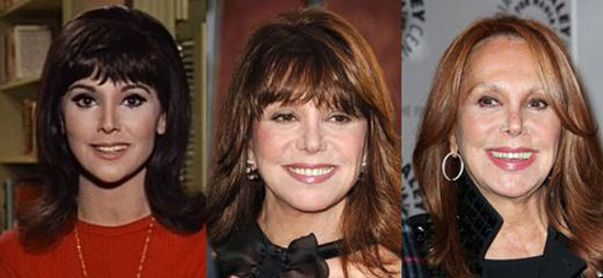 Marlo Thomas Plastic Surgery Before and After