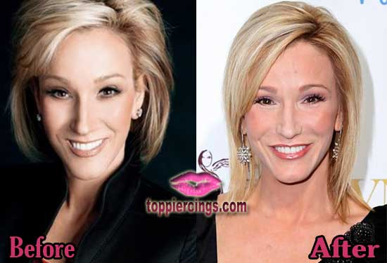Paula White Facelift Before and After