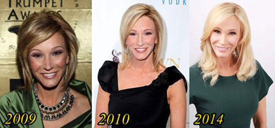 Paula White Plastic Surgery Before and After Pictures