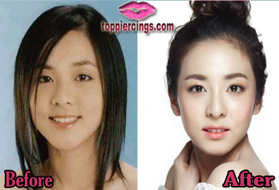 Sandara Park Nose Job Before and After