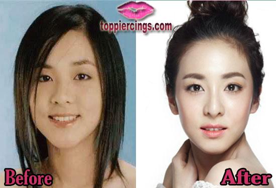 sandara park plastic surgery