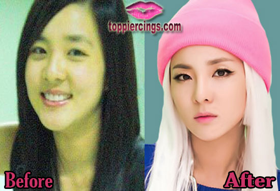 Sandara Park Plastic Surgery Before and After