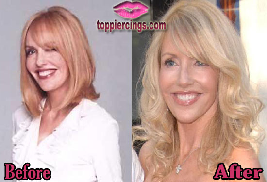 Shelby Chong Cosmetic Surgery Before and After