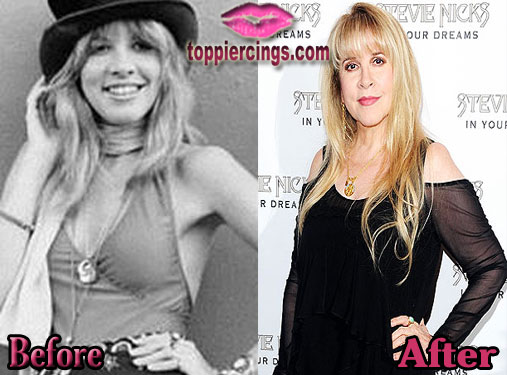Stevie Nicks Breast Implants Before and After