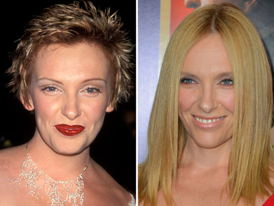 Toni Collette Before and After Plastic Surgery