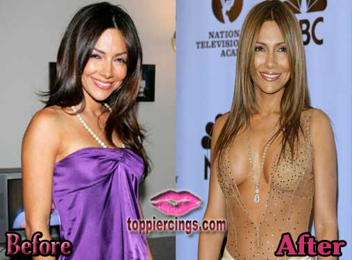 Vanessa Marcil Breast Implants Before and After