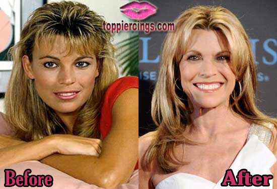 Vanna White Before and After Photos