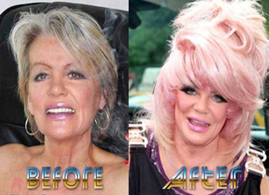 Jan Crouch Plastic Surgery Before And After Top Piercings