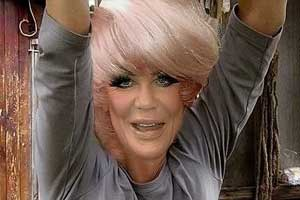 Jan Crouch Plastic Surgery