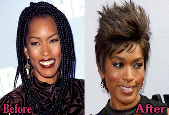 Angela Bassett Before and After Plastic Surgery