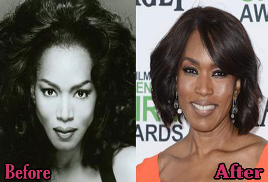 Angela Bassett Plastic Surgery Before and After