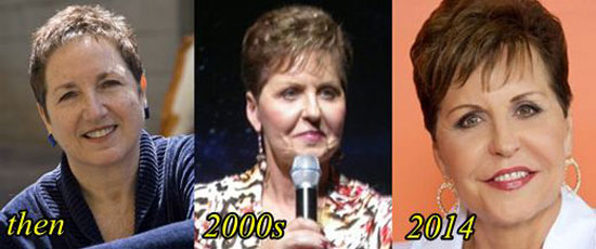 Joyce Meyer Before and After Photos